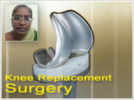 knee replacement video